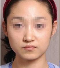 哈尔滨大韩国际整形医院面部吸脂手术案例_术前