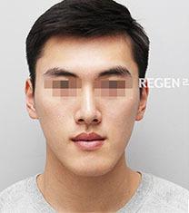 韩国丽珍整形医院-韩国丽珍男士轮廓整形案例前后对比