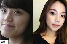 韩国做轮廓好医院科普(六):丽珍vs菲斯莱茵谁的案例更自然?