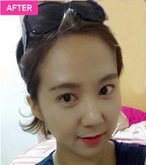 韩国A特整形医院双眼皮修复手术对比案例_术后