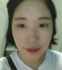 韩国A特整形医院全开眼角手术对比案例_术前
