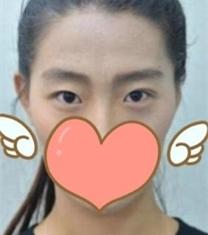 海南瑞韩刘申松眼部整形前后对比照片