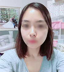 韩国美迪莹整形外科颧骨缩小案例对比_术后
