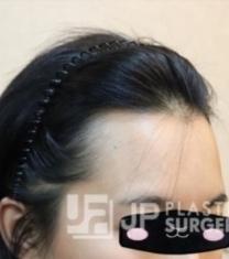 韩国JP整形崔钟弼发际线移植前后对比照片_术前