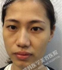 海南瑞韩医学美容杨永成面部填充前后对比照片_术前