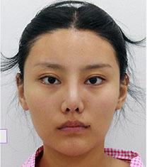 韩国一路美轮廓三件套术后一个月恢复效果_术前