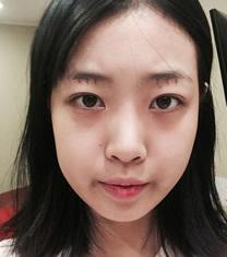 韩国JJ洪镇柱整形外科轮廓手术案例
