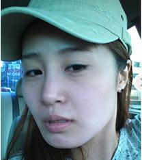韩国欧佩拉下颌角手术自拍对比
