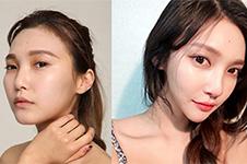 韩国做轮廓好医院科普(八):dacapoVS欧佩拉网红轮廓手术谁更牛
