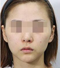 苏州美贝尔医院瘦脸针注射案例