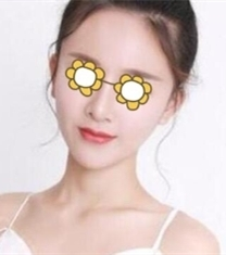 瑞韩医疗美容刘申松面部填充案例