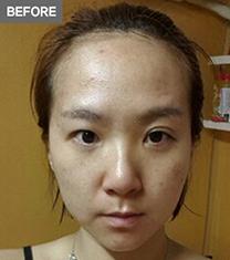 韩国A特整形医院双眼皮修复手术对比案例_术前
