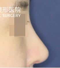 韩国贝缇莱茵整形医院鼻部整形对比案例