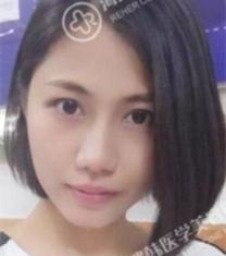 海南瑞韩医学美容杨永成面部填充前后对比照片_术后