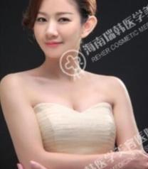海南瑞韩医学美容医院杨永成隆胸前后对比照片