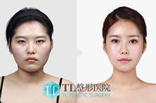 韩国丽妍K和爱我、TL颧骨案例分析,TL学院风更浓重!