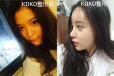 koko鼻整形医院在韩国口碑如何?案例真实效果好吗?