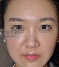 韩国艺德雅干细胞抗衰老手术案例
