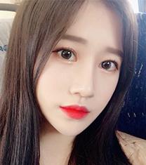 韩国星愿byul眼鼻综合手术案例前后对比
