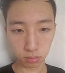 韩国星愿byul整形外科男生眼鼻综合整形案例
