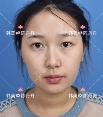 南昌韩美陈丹丹双眼皮手术前后对比照