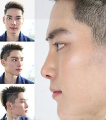 韩国诺宝丝医院男士隆鼻手术案例