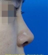 韩国Koko曹倍正短鼻矫正前后对比照片_术后