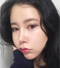 韩国Thenan鼻综合+面部脂肪移植案例前后对比_术后