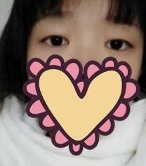 南昌韩美美容医院双眼皮50天对比照片_术前