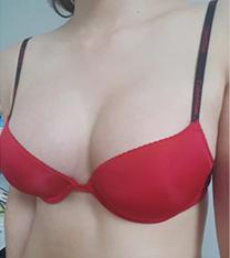 韩国thenan整形外科隆胸手术案例对比