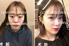 韩国高恩世上李炳浍鼻整形案例图片,手术风格是什么?