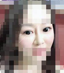 九江华美医院隆鼻+眼综合手术案例_术后