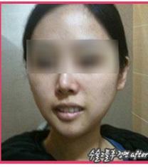韩国伍人整形魏圣润下颌角手术效果图_术后