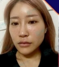 韩国NANA娜娜崔相錄轮廓整形前后照片_术前