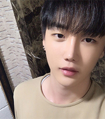 韩国星愿byul男生下颌角整形2个月恢复日记