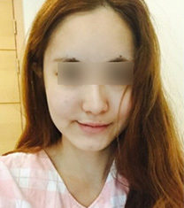 韩国伍人魏圣润医生下颌角整形前后对比照片_术前