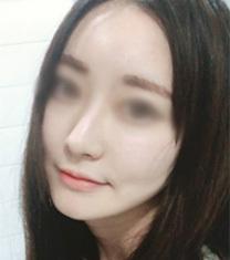韩国伍人魏圣润医生下颌角整形前后对比照片_术后