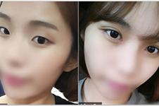 韩国优尼克眼睛修复成功率大吗,近期案例效果如何?