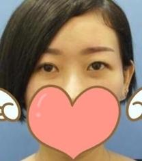 南昌韩美美容医院眼部整形前后对比照片
