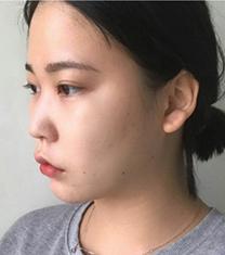 韩国Thenan鼻综合+面部脂肪移植案例前后对比_术前