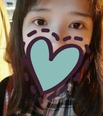 南昌韩美美容医院双眼皮50天对比照片_术后