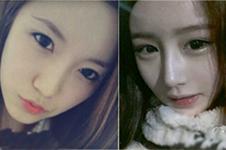 韩国高诺鼻和rococo鼻整形,都擅长鼻子但有这些不同!