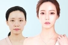 韩国面部整形价格像颧骨、下颌角、下巴分别多少钱?