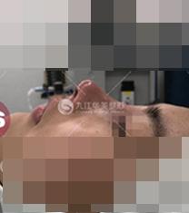 九江华美整形医院鼻部整形手术案例_术后