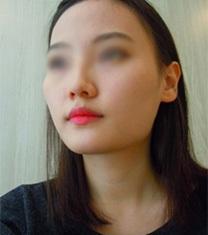 韩国伍人整形医院颧骨+下颌角术前术后案例_术前