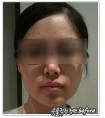 韩国伍人整形魏圣润下颌角手术效果图_术前