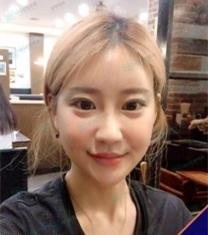 韩国NANA娜娜崔相錄轮廓整形前后照片_术后