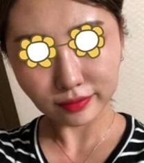 韩国娜娜NANA轮廓手术前后对比照片_术前
