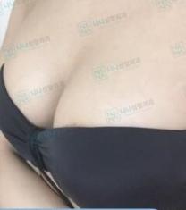 韩国娜娜nana胸部整形前后对比照片_术后