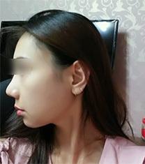 韩国伍人下颌角整形网红小姐姐恢复照片